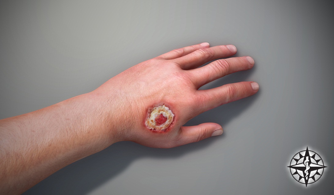Skin Ulcers – Risk Factors, Blood Circulation, and Types